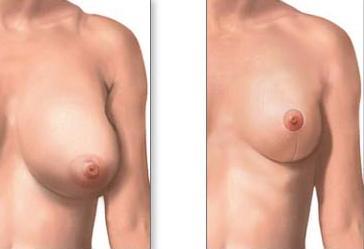 göğüs küçültme ameliyatları